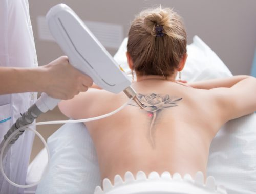 The Best Tattoo Removal Methods and Options - Goose Tattoo